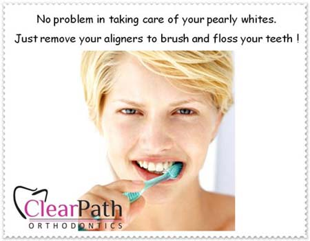 how to clean plastic aligners